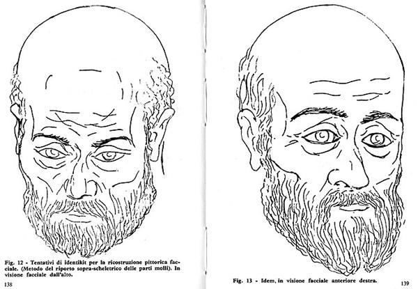 Николай Мирликийский, портрет восстановлен по черепу профессором Мартино. Мощи Николая теперь не в Мирах. В 1087 году они были похищены итальянскими молодцами и перевезены в итальянский город Бари