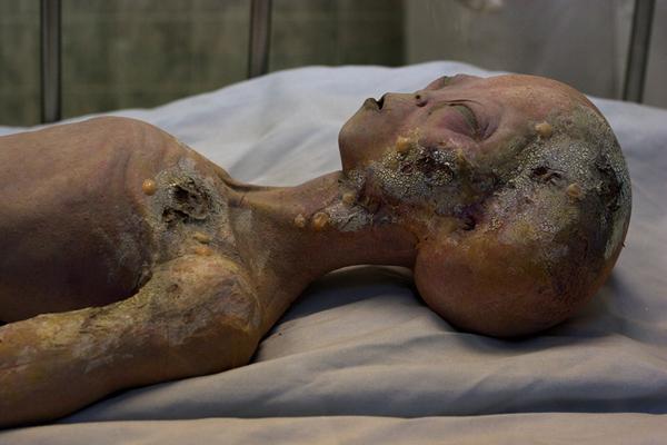 «Розуэлльская аутопсия». Видимо, кадр из фильма.